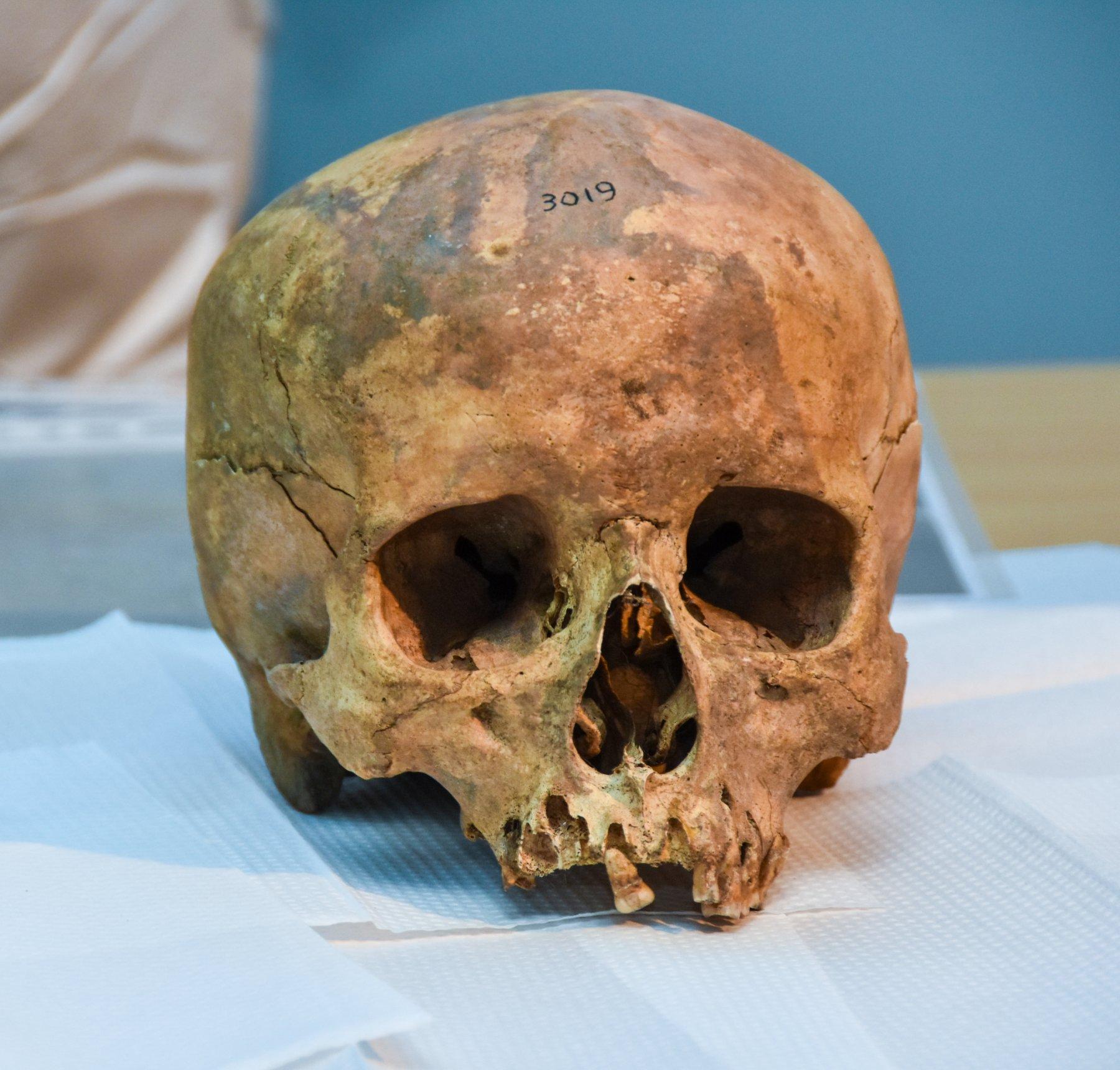 schedel onderzoek